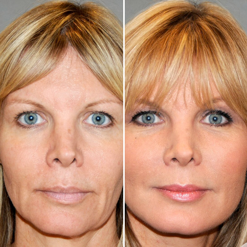 HiFu, Non-surgical face lift, Ipswich | Before the Lines