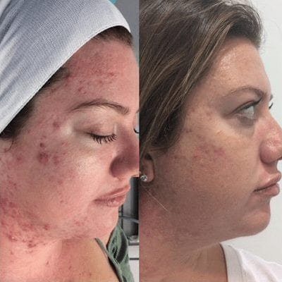 Microdermabrasion Ipswich Before and After