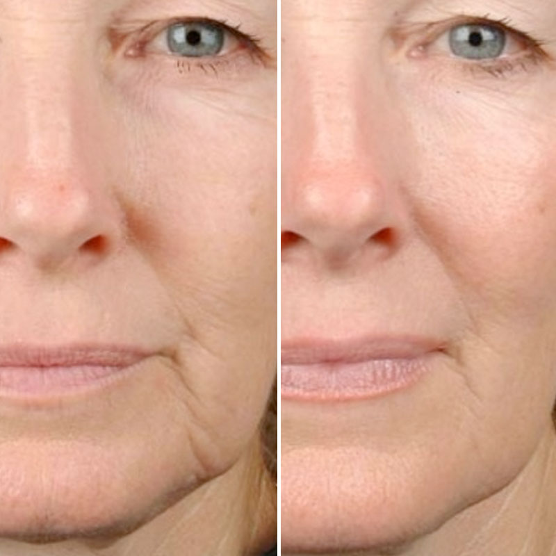 Radio Frequency (RF) Skin Tightening Upswich
