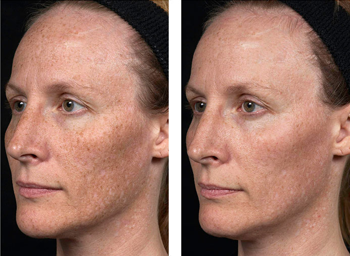 IPL Skin Rejuvenation Ipswich 4