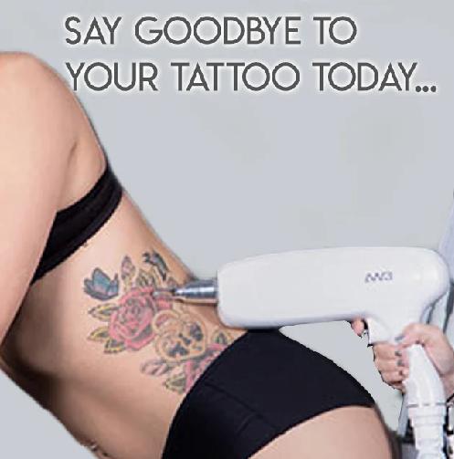 Laser Tattoo Removal Ipswich 2